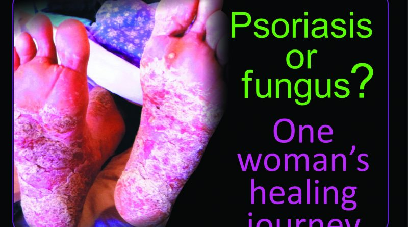 Psoriasis, or is it? How that sugary snack may be fueling fungus